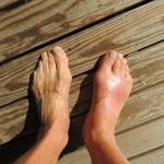 足の指の痛み・腫れ 症状と治療法は?